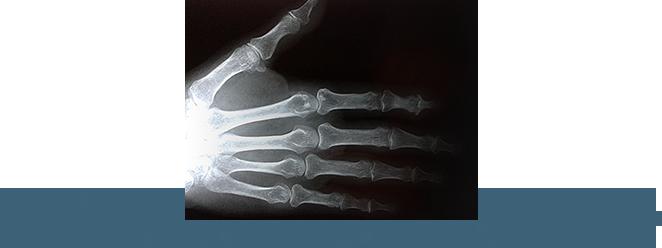 RTG ręki. Zmiany zwyrodnieniowe stawów ręki