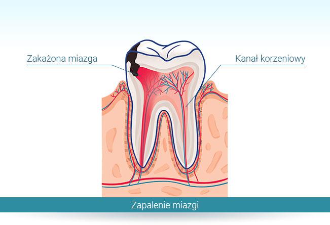 Zapalenie miazgi w strukturze zęba